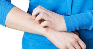 Жена със сърбеж в областта на ръката