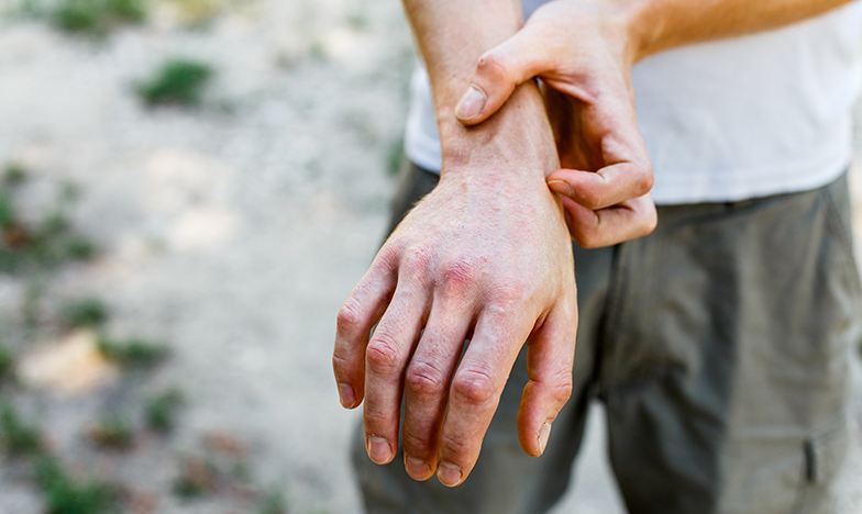 Атопичен дерматит на ръцете