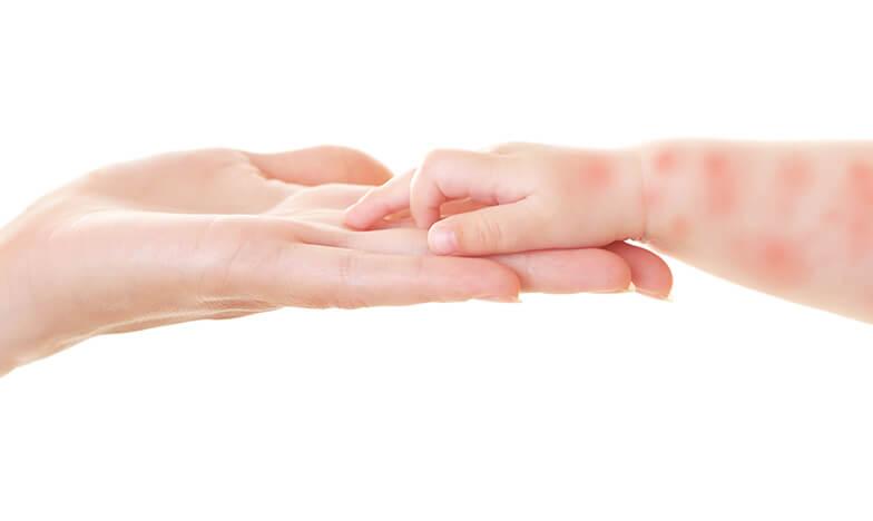 ръка на възрастен и ръка на дете с алергия