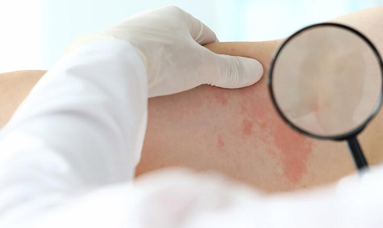 Лекар преглежда кожна алергия
