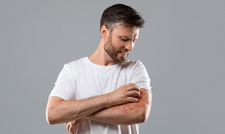 Мъж под стрес с атопичен дерматит